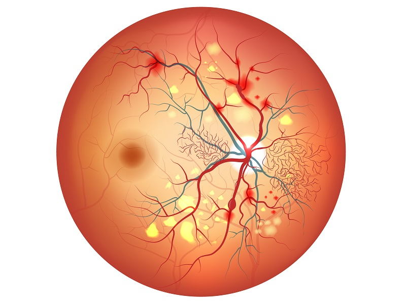 dt_151114_Diabetic_Retinopathy_Illustration_800x600